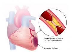 penyempitan arteri koroner jantung